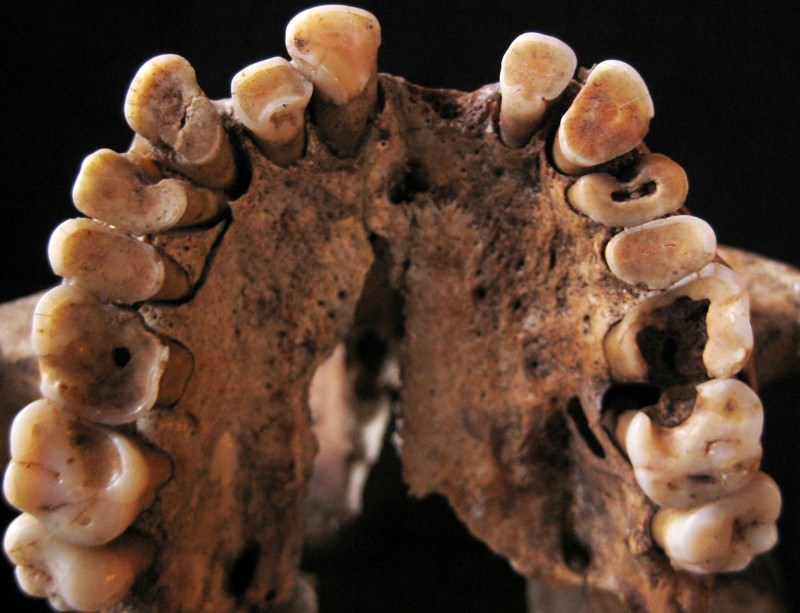 Ancient hunter-gatherers had rotten teeth