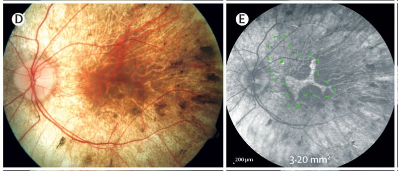 A section of the retina, marked by green dots, was detatched ready for gene therapy injection