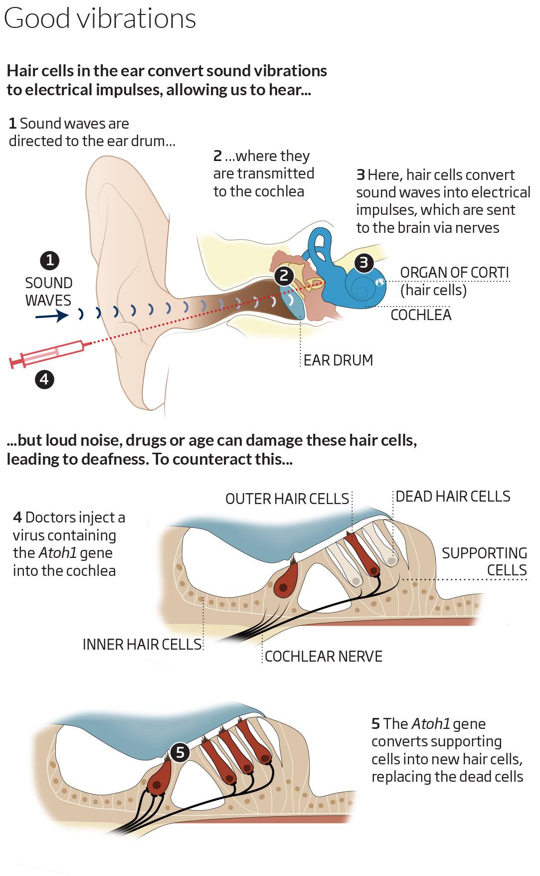 Restoring Hearing