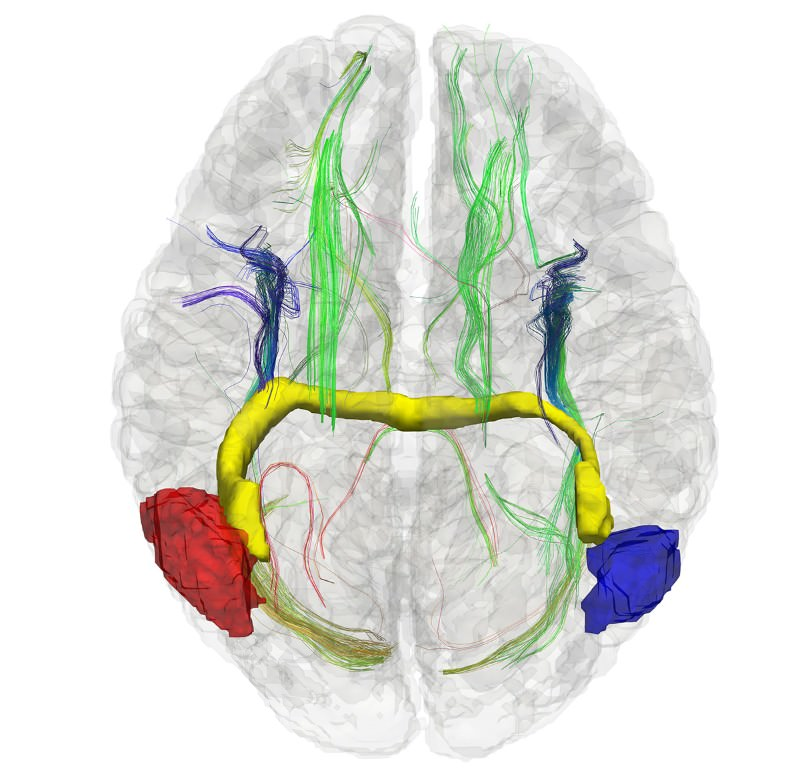 This 3D image shows the brain of a person born without a corpus callosum connecting the two hemispheres. A neuronal bundle (in yellow) has formed to connect the right brain (with blue section) to the left brain (with red section), enabling the two sides of the brain to communicate
