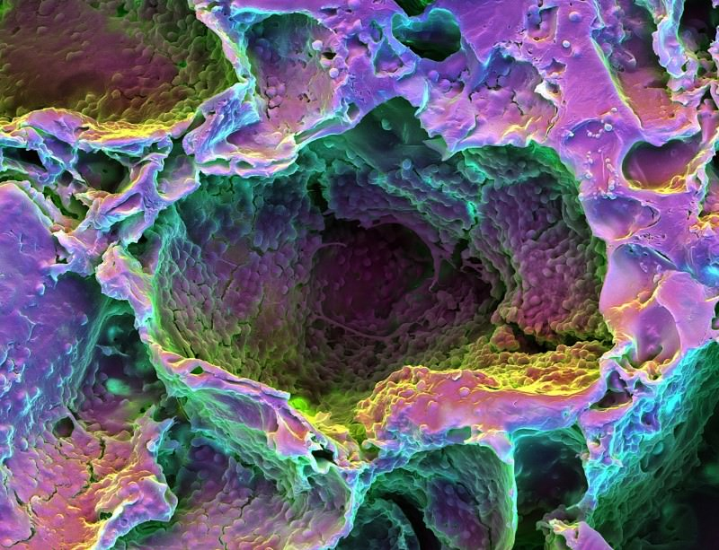 A scaffold of cells reacting to laser treatment in glorious pseudocolour