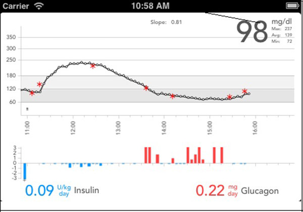 The smartphone component of the bionic pancreas system displays in an upper panel the blood sugar levels (black circles) that are reported by the glucose monitor every 5 minutes, supplemented by any fingerstick readings (red asterisks) taken by the user. The lower panel shows doses of insulin (blue) or glucagon (red) automatically administered in response to blood sugar variations