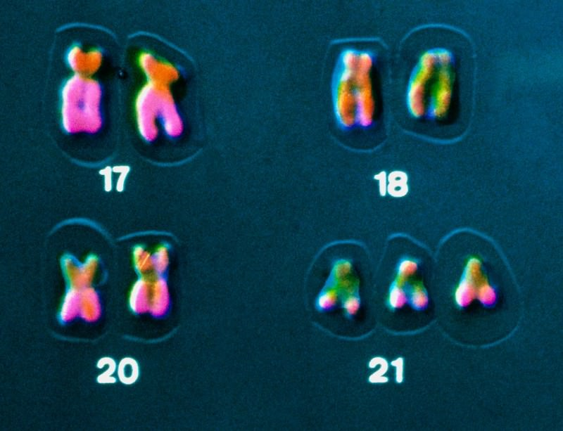 Down's syndrome is caused by having an extra copy of chromosome 21