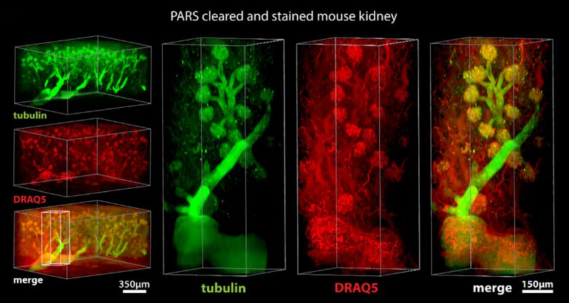 Detergent treatment turns a mouse see-through