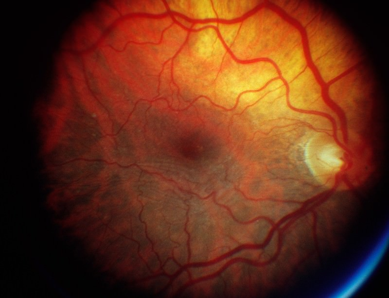 Grafts derived from stem cells could keep the retina in good working order