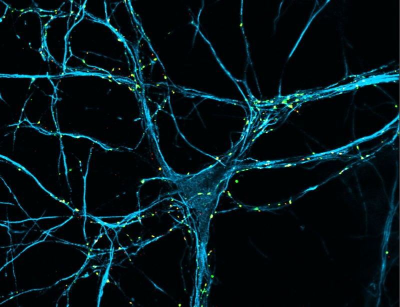 Killer in the brain could help treat Parkinson's