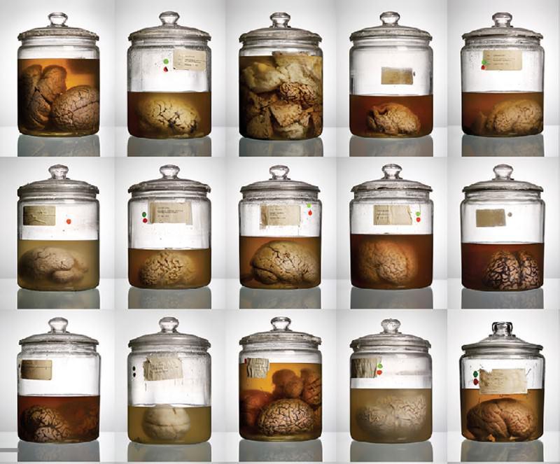 Bizarre brains highlight missing organ mystery
