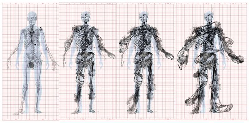 Cancer-warped skeletons imagined for building design