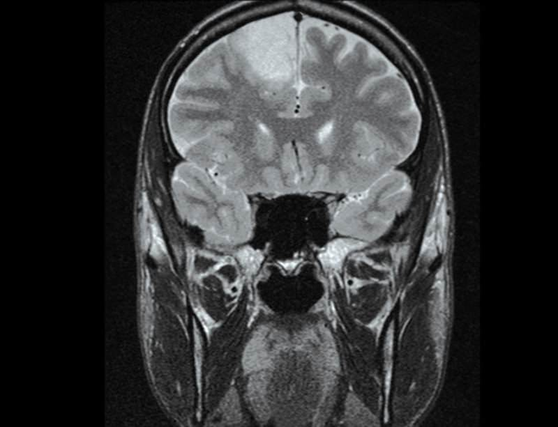 Stuart's glioma tumour was discovered in his frontal lobe during a routine scan in 2008