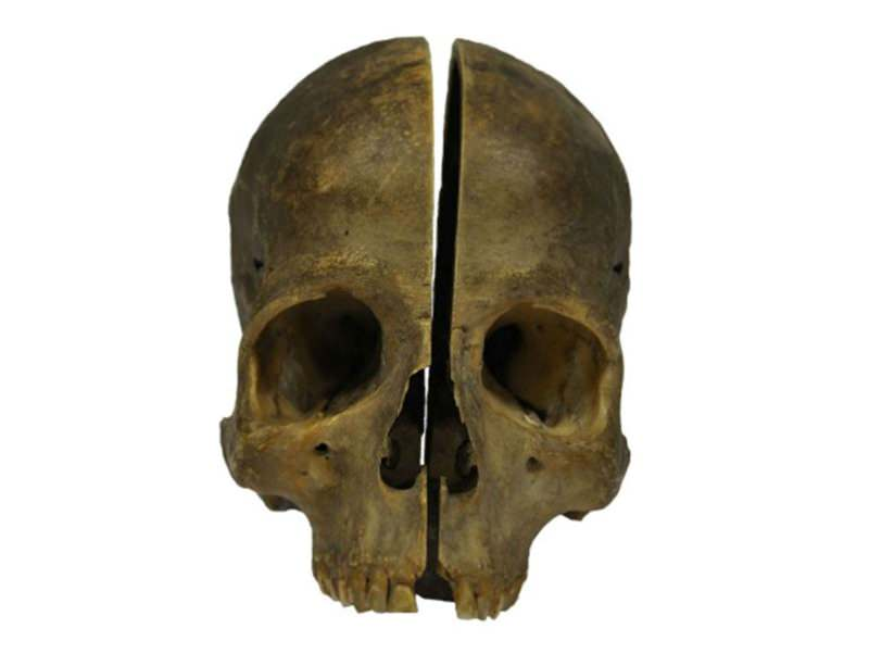 Split skull provides rare slice of dissection history