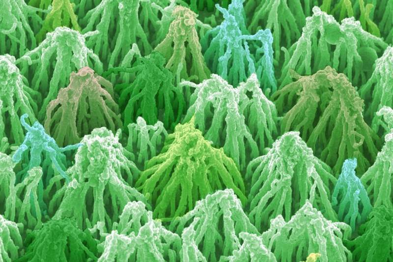 Diamond-coated carbon forest wins photo prize
