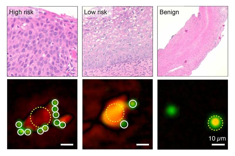 Smartphone holograms can diagnose cervical cancer