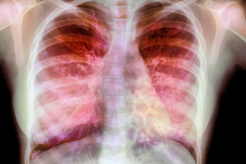Gene therapy works in cystic fibrosis for the first time