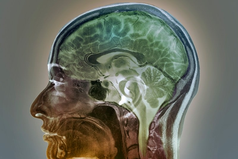 Blocking brain protein could stop memory loss caused by ageing