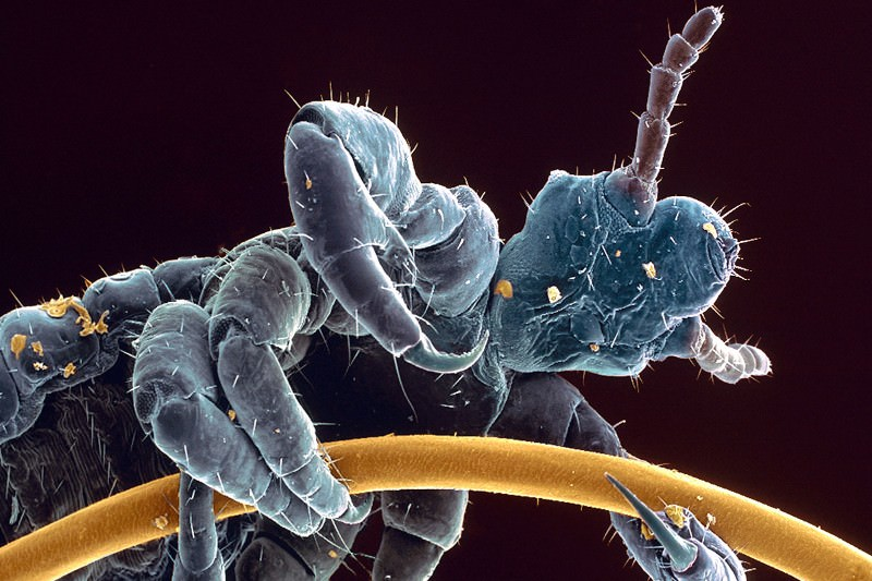 Head and body lice splice their identical genes differently