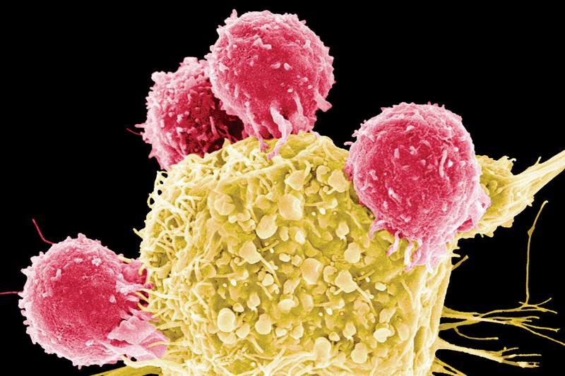Cancer trap grabs wandering tumour cells to warn of lethal spread