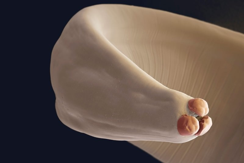 Different parasitic worms can raise or lower female fertility