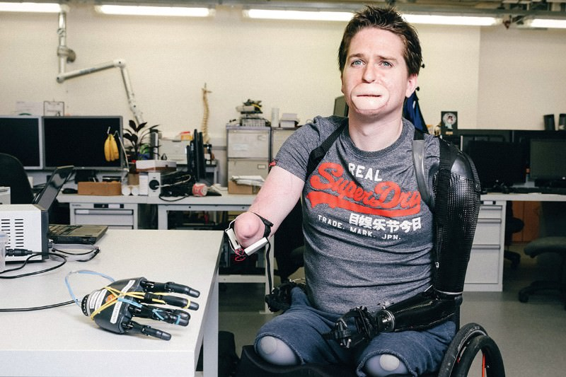 Man with no limbs controls robotic hand using muscle whispers