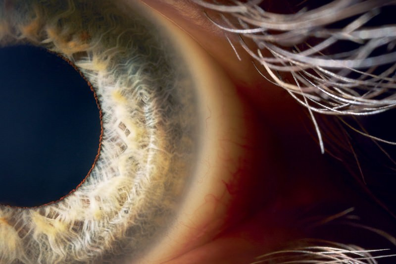 Bionic eye will send images direct to the brain to restore sight