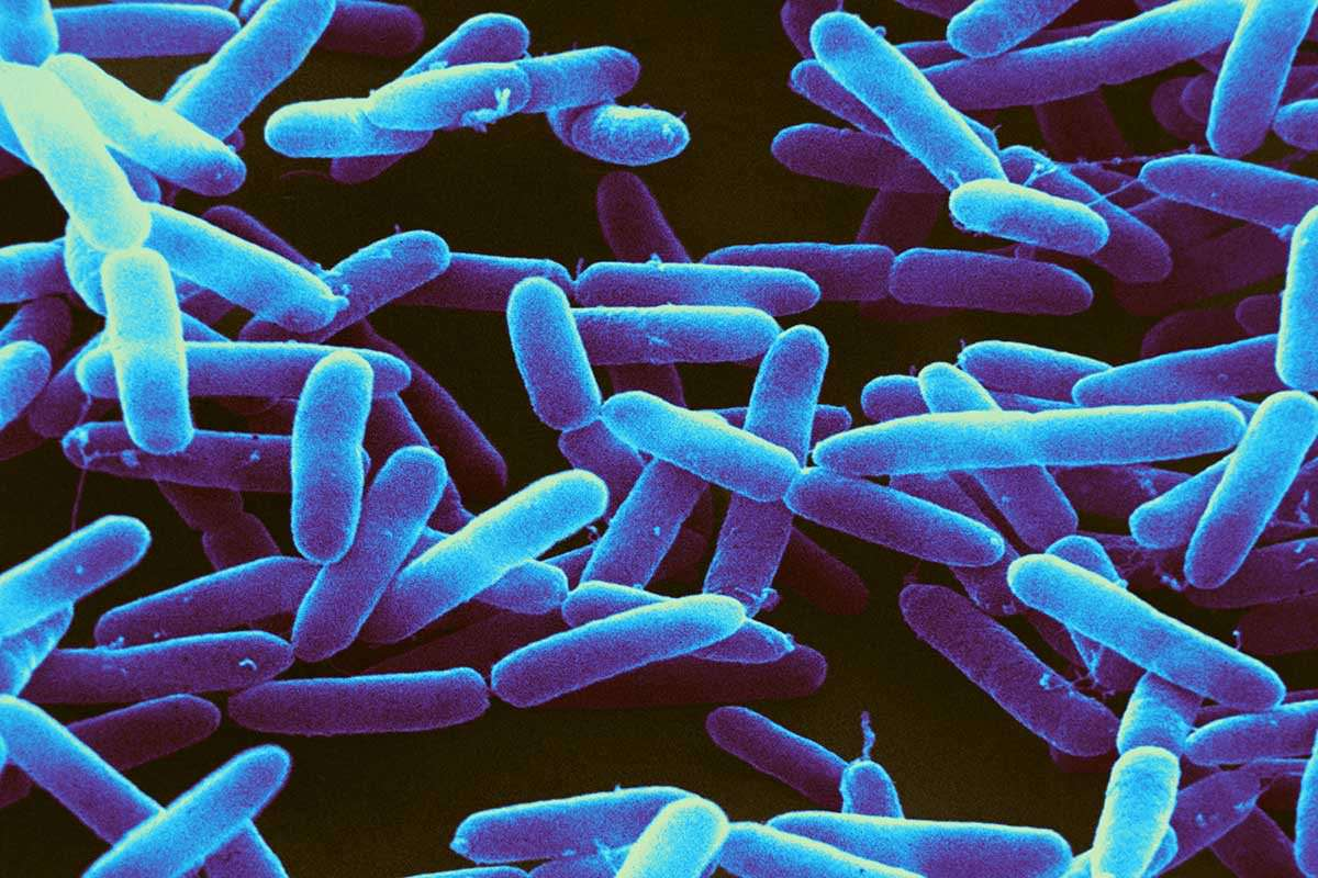 Rod shaped Pseudomonas bacteriabacteria