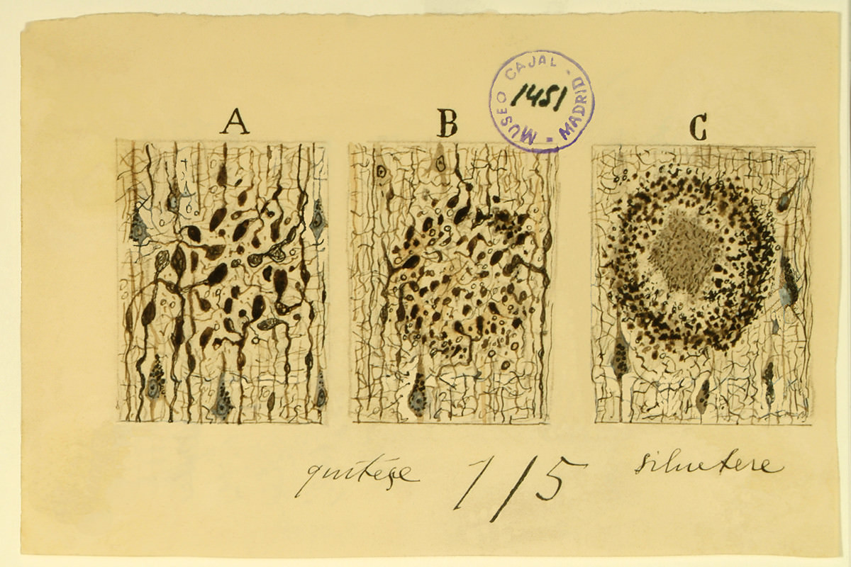 Cajal-Legacy,-Formation-of-Alzeimer-Plaque,-Instituto-Cajal-(CSIC),-Madrid