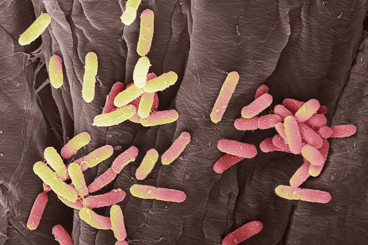 E. coli bacteria found in a urine sample
