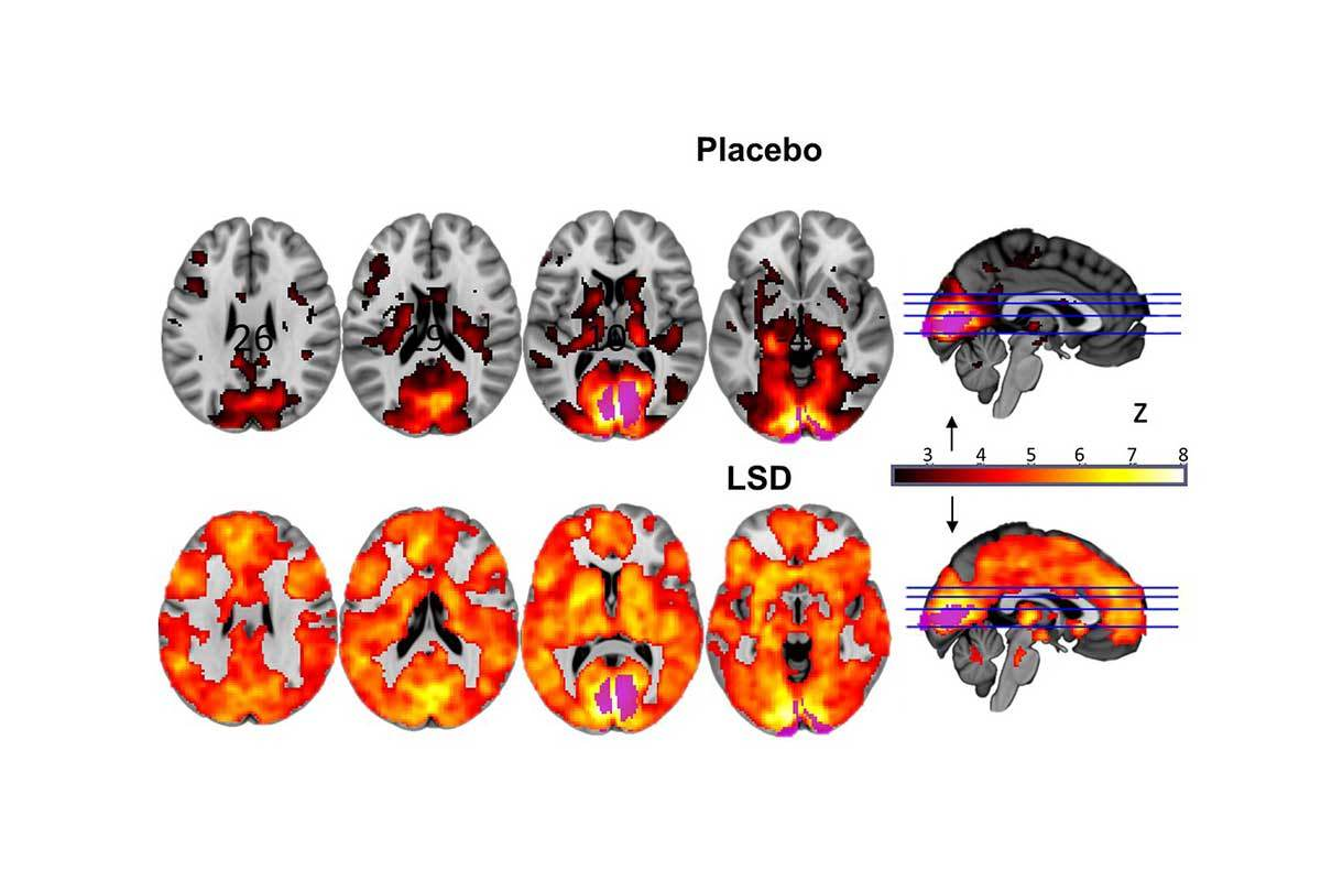 Scans showing marked difference in active areas between placebo and LSD