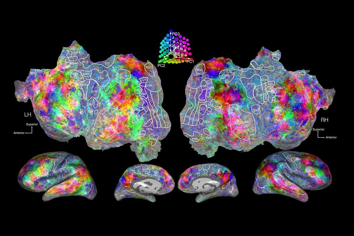 Composite of brain images broken down into multicoloured subregions