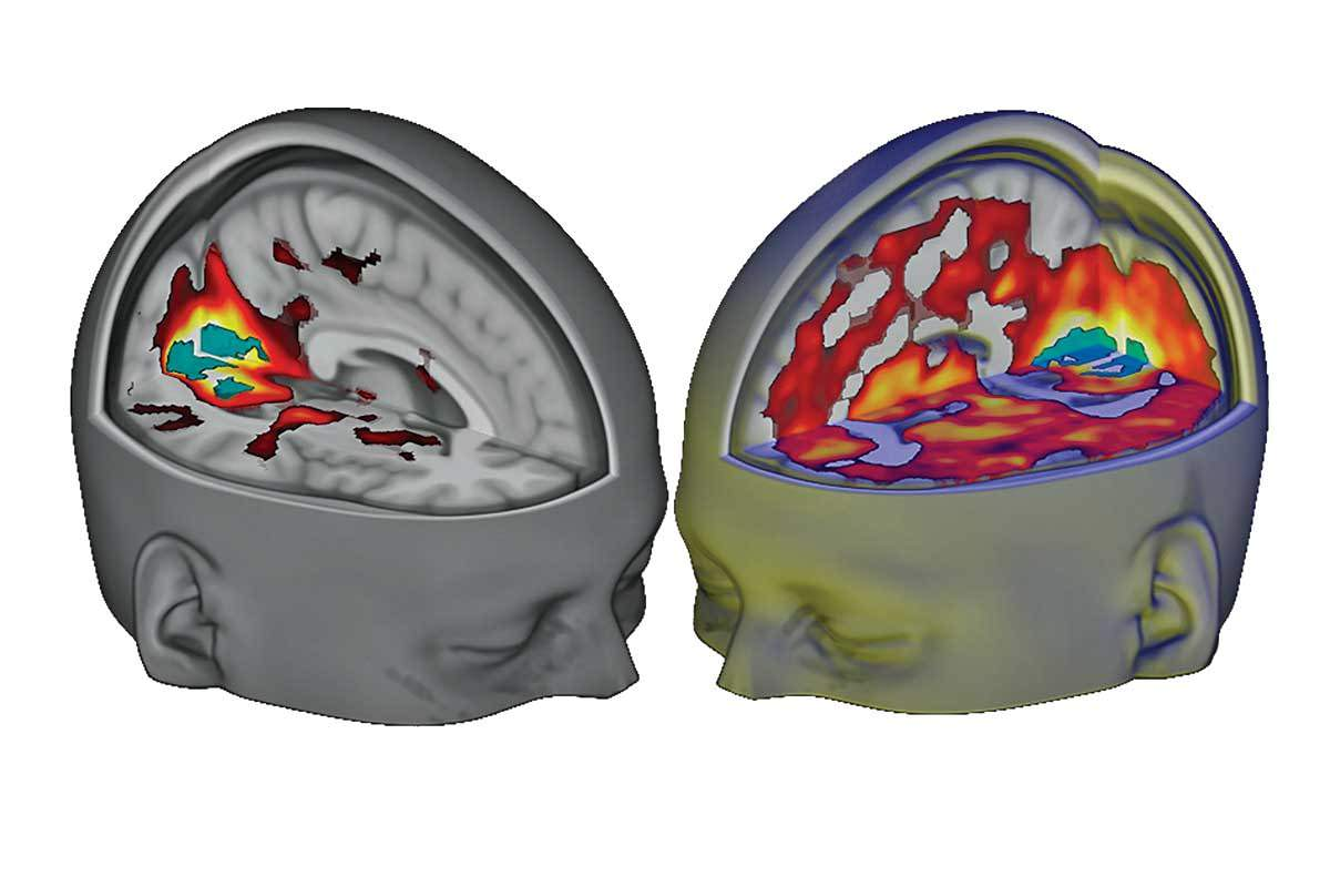 Multicoloured brain scans