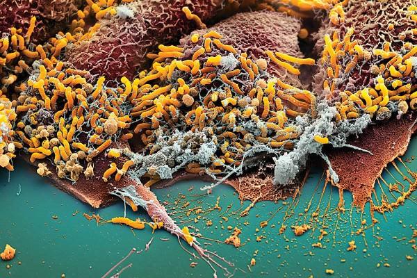 Microscope image of helicobacter bacteria