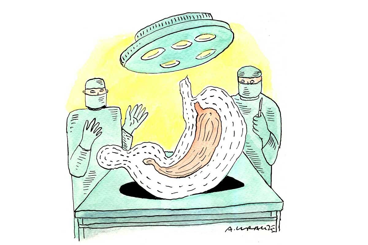 Cartoon shows surgeons operating what appears to be a giant stomach