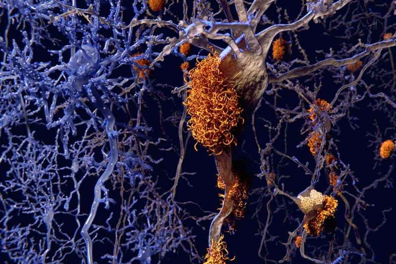 Plaques in the brain are behind Alzheimer's