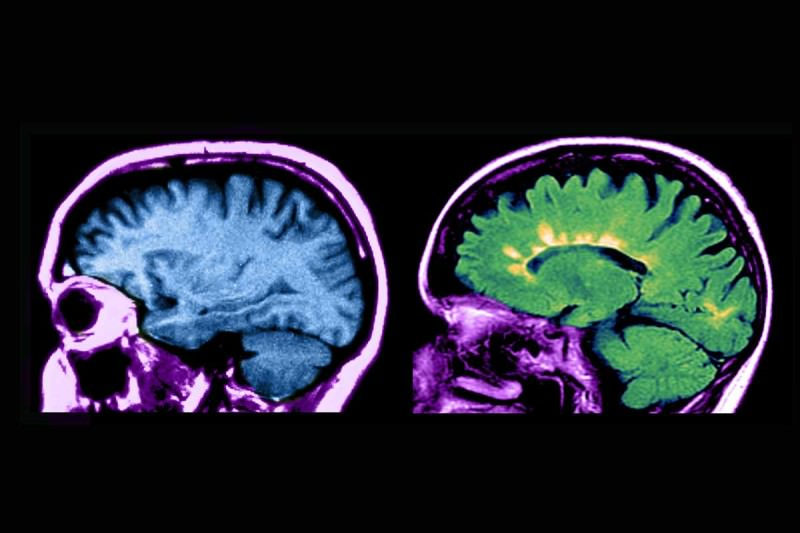 MRI scans of a healthy brain (left) and one with multiple sclerosis (right)