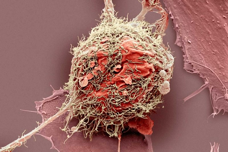 Picture of a bone cancer cell