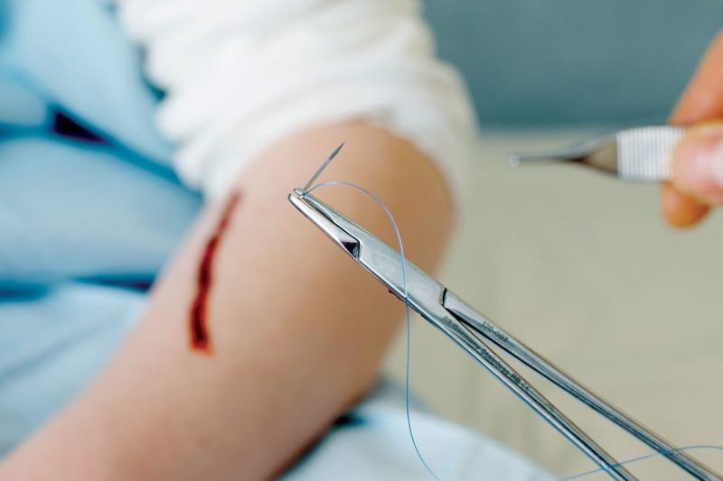 wound thread
