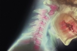X-ray of a broken neck