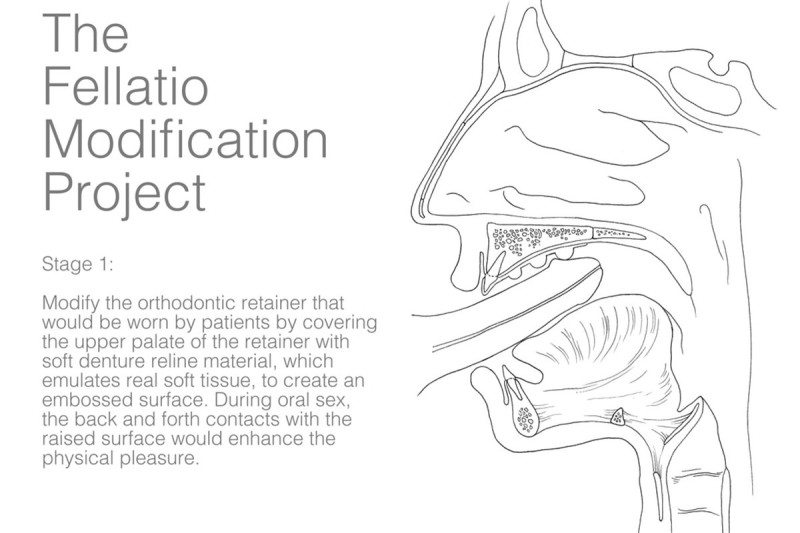 "A medical drawing of the sex prosthetic with text that reads ""The Fellatio Modification Project. Stage 1, Modify the orthodontic retainer that would be worn by patients by covering the upper palate of the retainer with soft denture reline material, which emulates real soft tissue, to create an embossed surface. During oral sex, the back and forth contacts with the raised surface would enhance the physical pleasure"""