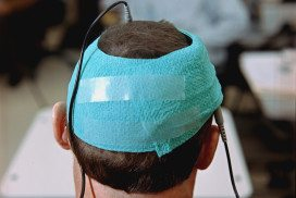 Transcranial direct current stimulation (tDCS) uses electrodes to send a current across the brain