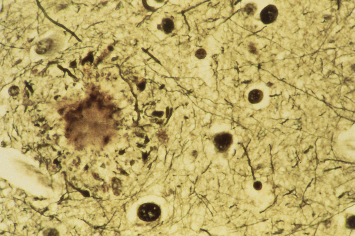 human brain tissue with Alzheimer's disease