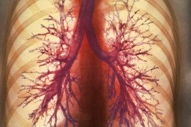Medical image of the airways in a pair of lungs