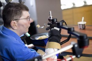 Bill Kochevar can feed himself thanks to a neuroprosthesis