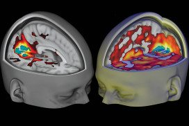 Models of brain activity