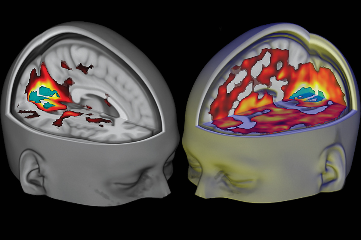 Scientists have found evidence of a higher state of consciousness
