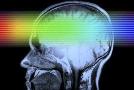 Rainbow light passing through brain scan