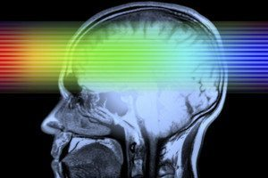 Rainbow light passing through brain scan