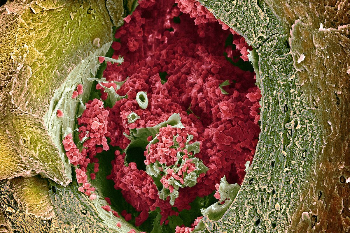 Bone marrow makes our red blood cells