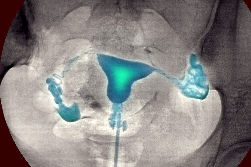 x-ray image of a woman's uterus and fallopian tubes