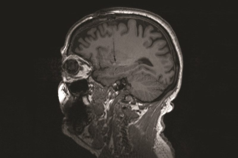 Brain scan of patient with