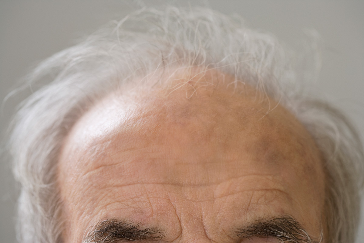 A balding man's head