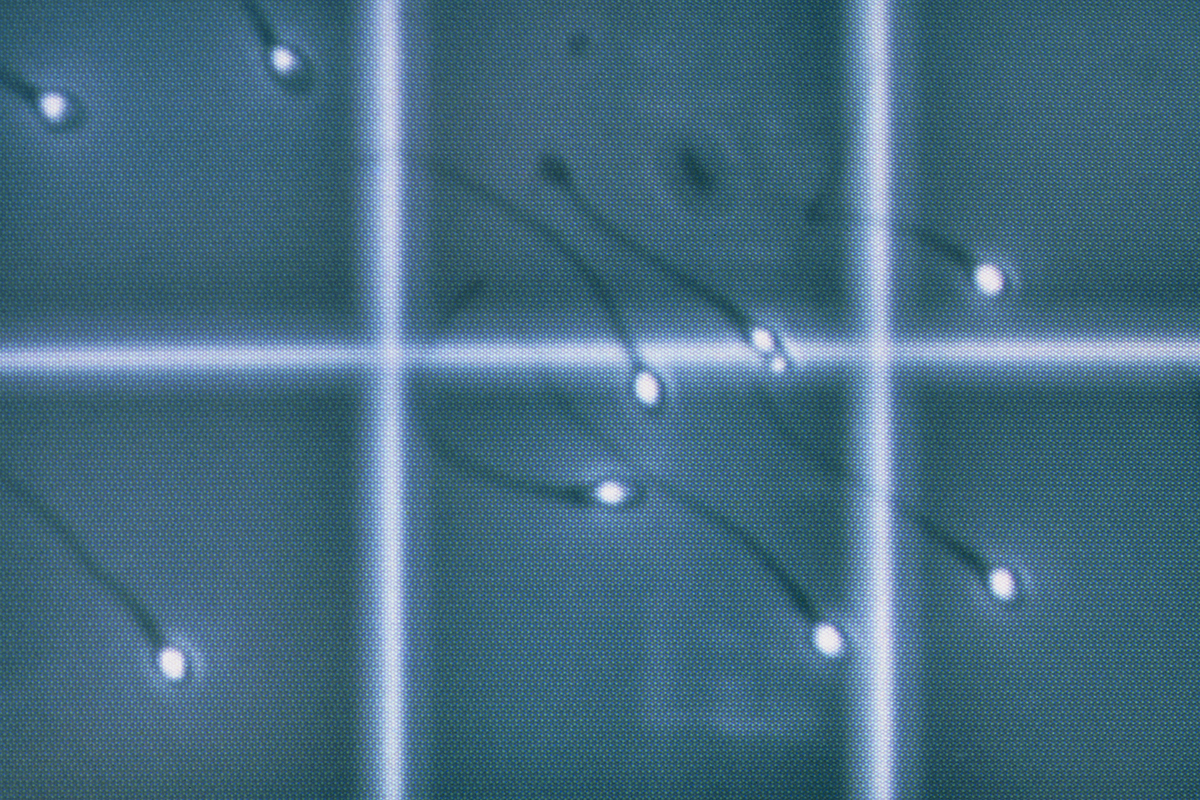 'Wake up call' over falling sperm counts in western men